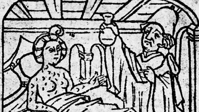 Ртуть от сифилиса